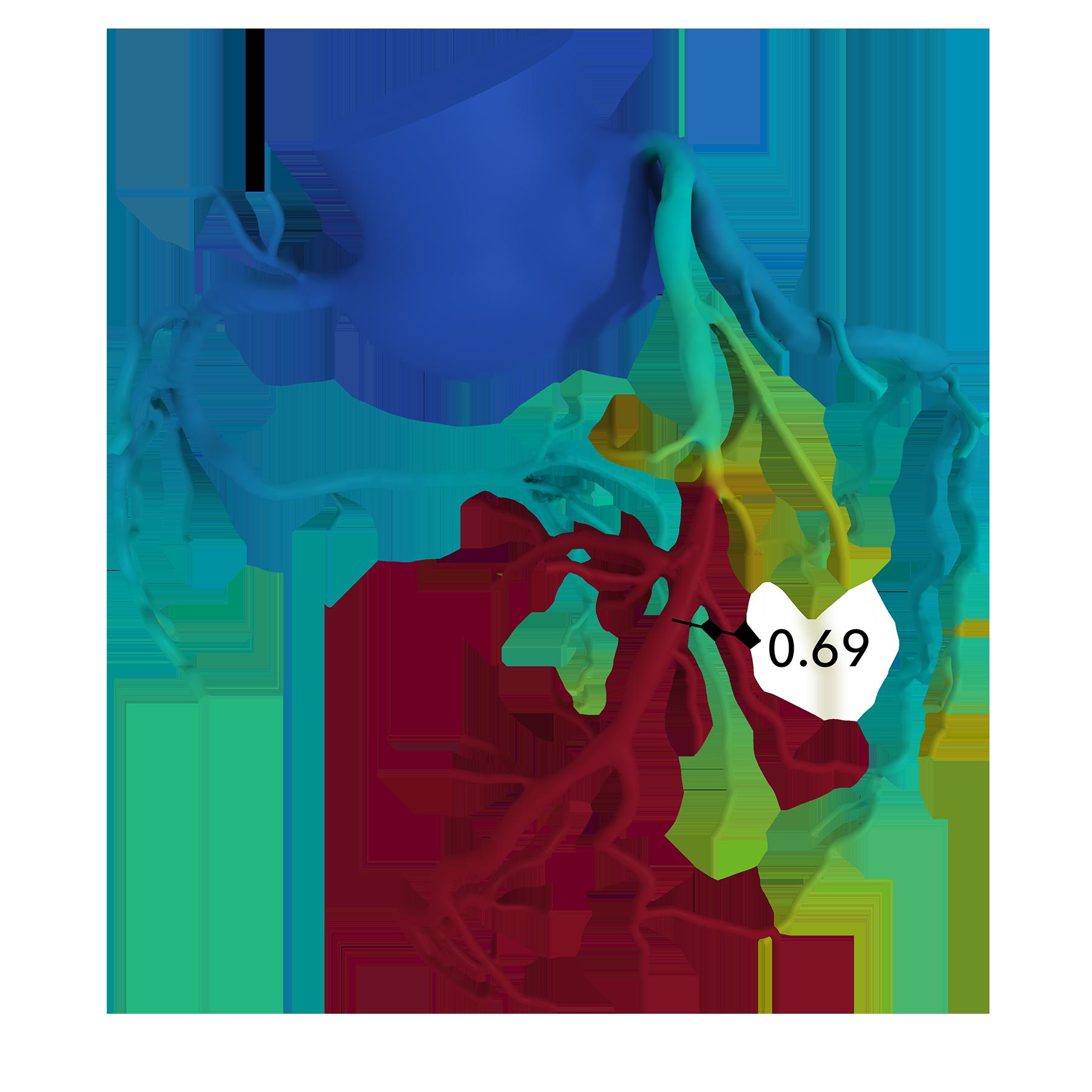 HeartFlow 3D Color Model