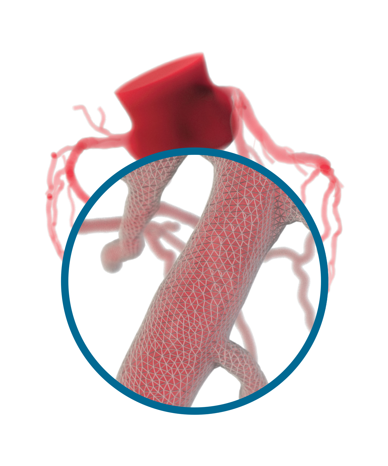 HeartFlow 3D Physicological Assessment
