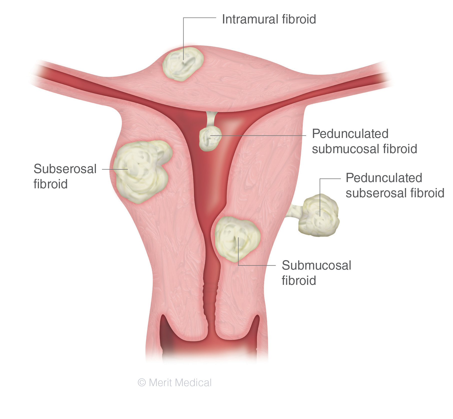 Fibroid Types